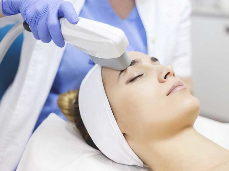 Things to Know about Laser Treatment before Going for It